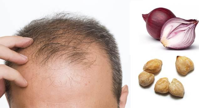 Penumbuh Rambut Alami
